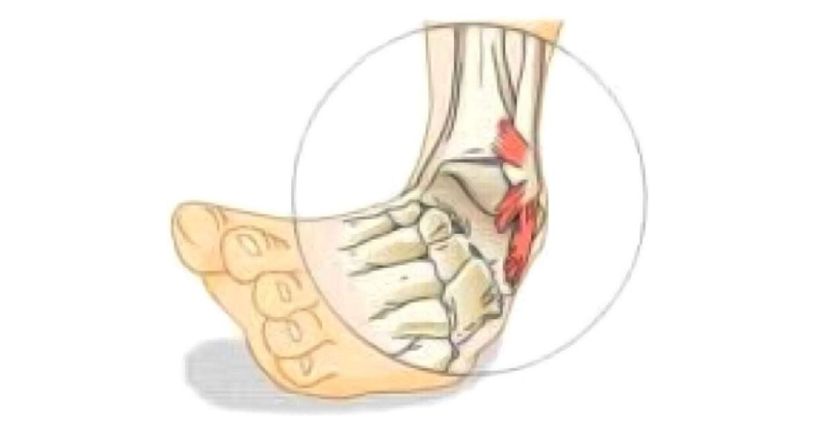 One of the most common ankle injuries seen by Musculoskeletal Physiotherapists is a ligament sprain.  The most common ligament sprain is the lateral ligament.  Lateral ankle sprains account for 85% of all ankle sprains.