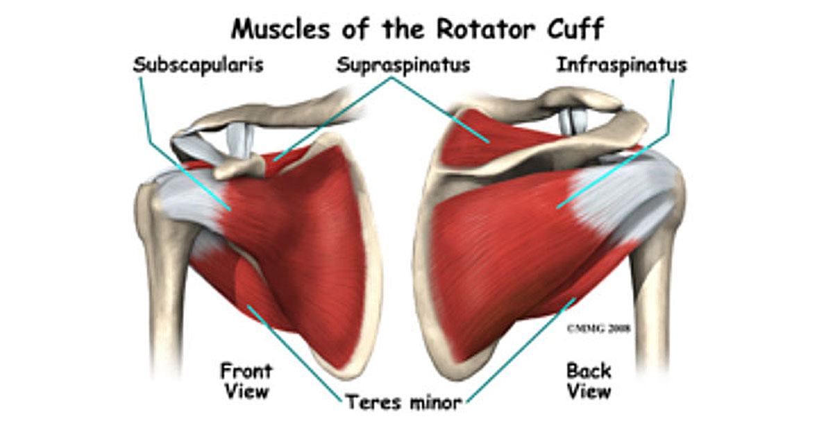 Rotator Cuff Tear What Should I Do With It