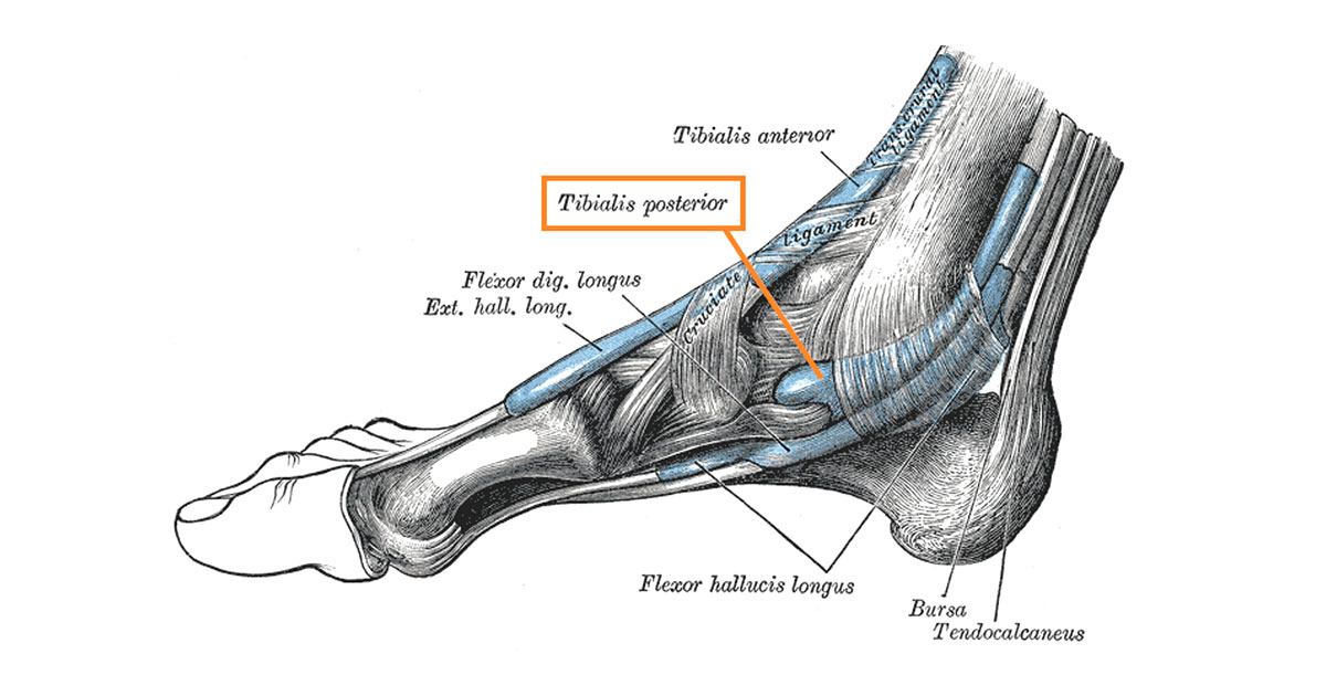 Posterior tibial tendon dysfunction is a common condition resulting from trauma or overuse injury to the tendon of the tibilais posterior muscle in the lower leg.